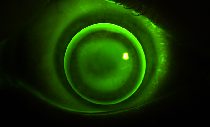 Sodium Fluorescein image showing a 3-point touch of a Innocon Keratocon RGP lens fitted on a keratoconus eye.